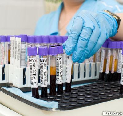 Анализ на АЛТ (аланиновая трансаминаза) от компании Центр семейной ...