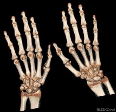 Компьютерная томография кисти руки
